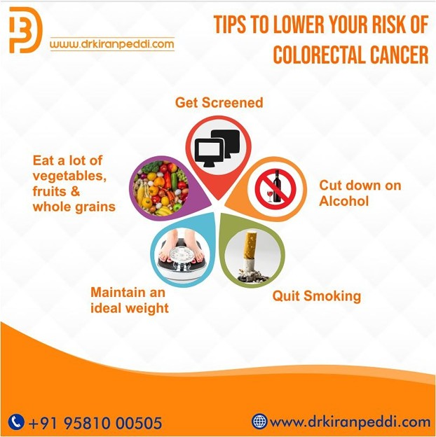 Best Gastro Surgeon in hyderabad | Colorectal tips