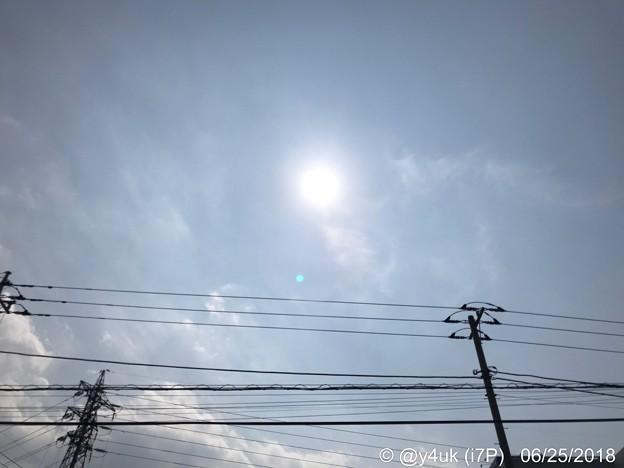 Photos: 深夜セネガル戦後の寝不足日中、猛暑の中Go炎天下青空太陽!電線も茹で上がる(~_~;)通院ついで熱中症なりて点滴、落ち着く静かBGM過酷家じゃない自分らしさ外で。今日しかない、今日でよかった(-。-;