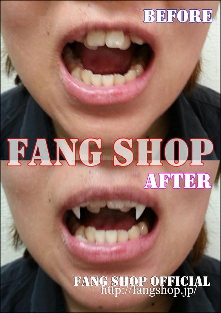 FANG SHOP 付け牙 A-0277-?(左右側切歯審美Type)
