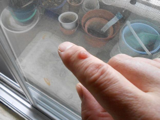 指の関節から毒素が出てきたのだとか??