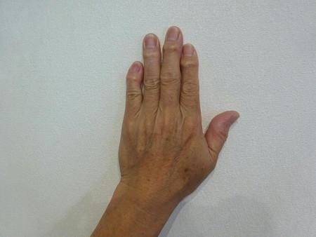 200509左手