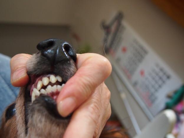 写真: 無麻酔で歯石取り前歯上下