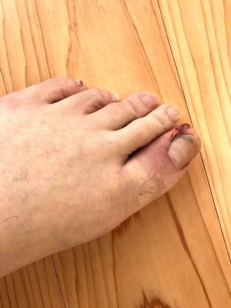 1204_陥入爪の手術跡